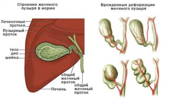 deformatsiya_zhelchnogo_puzirya_571x349.jpg