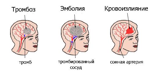 narusheniye-mozgovogo-krovoobrashcheniya.png
