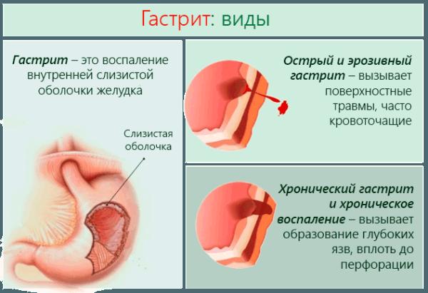 Vidy-gastrita-600x411.png