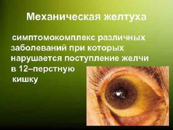 mehan-zheltuha-1-550x413.jpg
