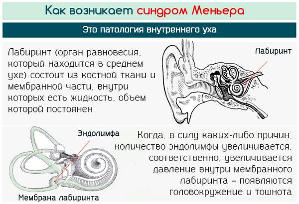 kak-razvivayetsya-sindrom-menyera.png