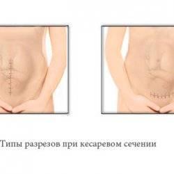 1443430582_vidy-kesareva-secheniya.jpg