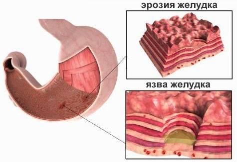 eroziya-zheludka2.jpg