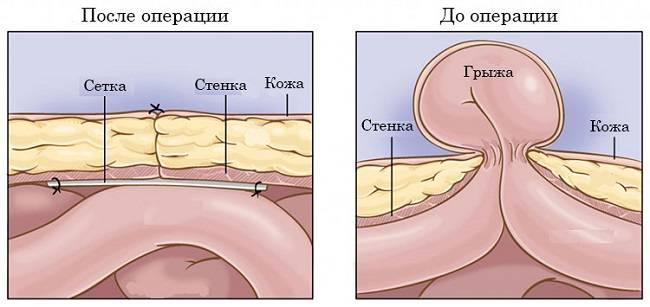 pupochnaya-gryzha-operatsiya.jpg