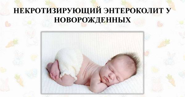 Nekrotiziruyushhij-enterokolit-u-novorozhdennyh.jpg