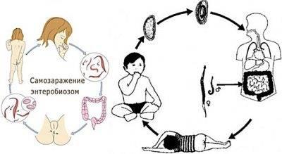 soskob-na-enterobioz-u-detej-4.jpg