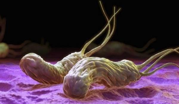 helicobacter-pylori.jpg