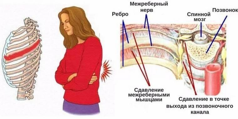 1539697573_mezhrebernaya-nevralgiya.jpg