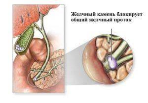 Obstrukciya-ili-atreziya-zhelchevyvodyashhikh-protokov-300x210.jpg