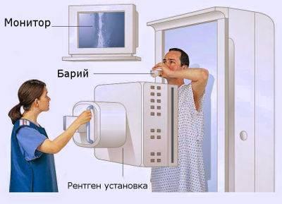 rentgenoskopiya-zheludka-1.jpg