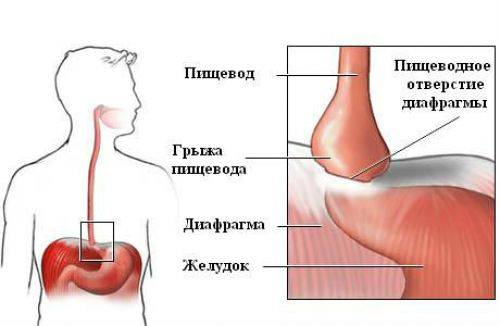 rent-zheludka-3-500x326.jpg