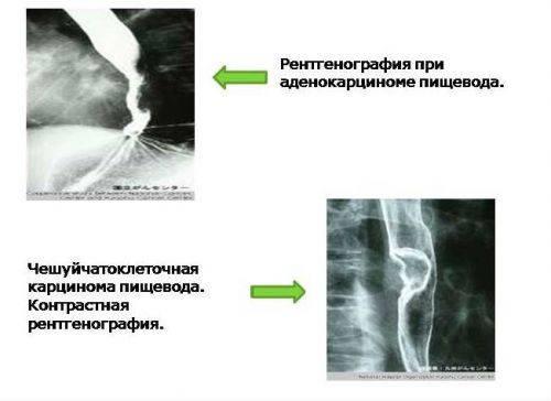 rent-zheludka-4-500x364.jpg