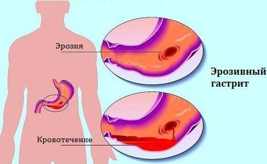 eroziinui-gastrit.jpg