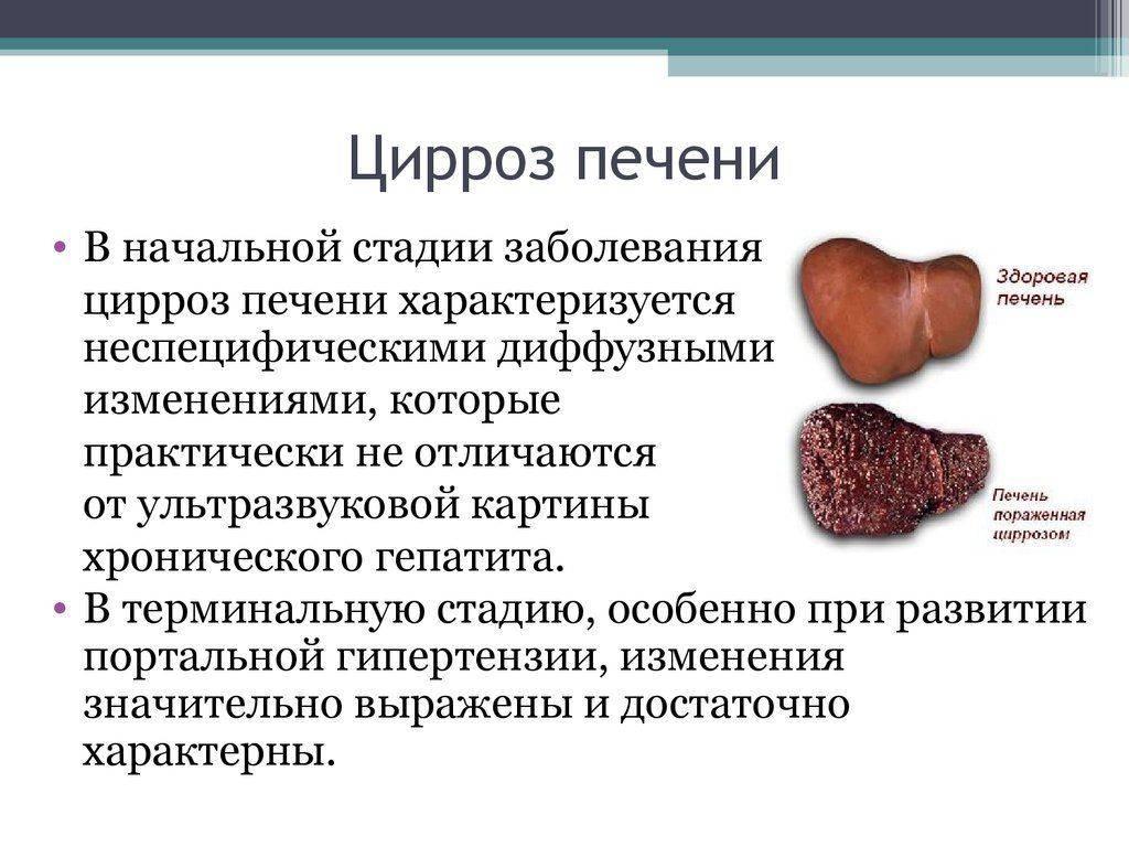 tsirroz-pecheni-skolko-zhivut1-1024x768.jpg