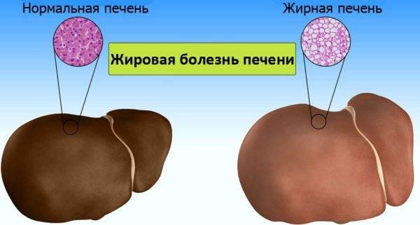 zhirovaya-bolezn-pecheni-e1522871205827.jpg