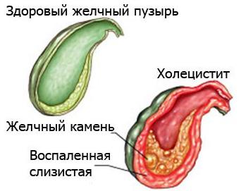 vospalenie-zhelchnogo-puzyrya-1.png