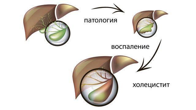 vospalenie-zhelchnogo-puzyrya-2.jpg