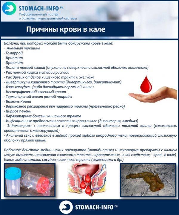 Prichiny-krovi-v-kale-600x719.jpg