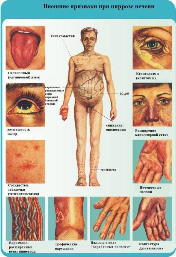 Simptomyi-tsirroza-pecheni-u-muzhchin-600x879.jpg