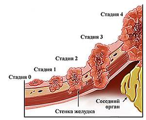 stadii-raka-zheludka.jpg