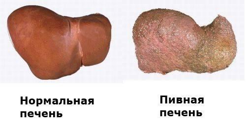 zhirovaya_distrofiya_pecheni_lechenie.jpg