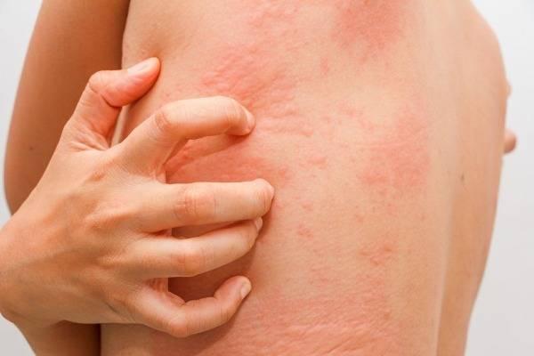 allergicheskaya-reaktsiya.jpg