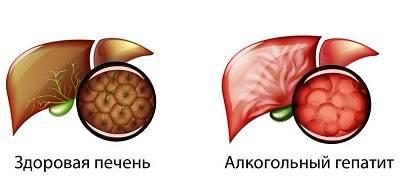 Alkogolnyj-gepatit-2.jpg