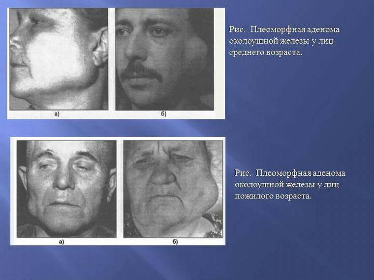 adenoma-sljunzhel-1.jpg