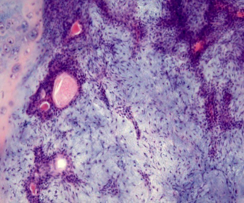 adenoma-sljunzhel-2.jpg