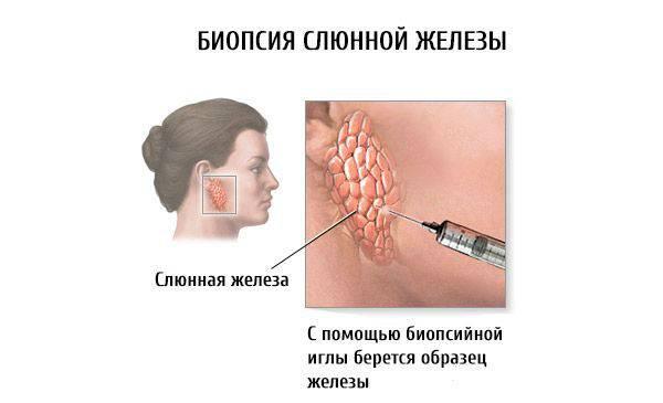 adenoma-sljunzhel-3.jpg