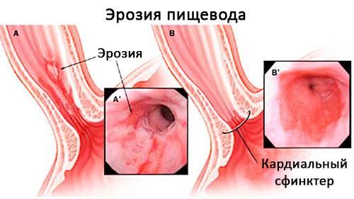 eroziya-pischevoda-2.jpg