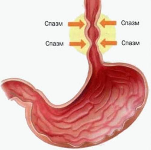 Спазм пищевода и как его снимать, симптомы и лечение, препараты