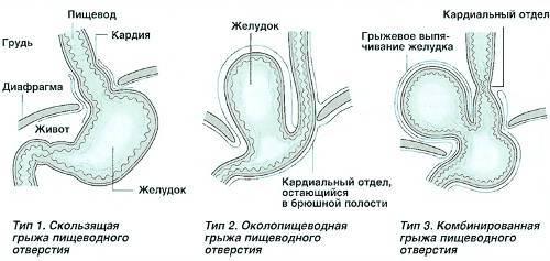gryzha-pischevodnogo-otverstiya-diafragmy-2.jpg