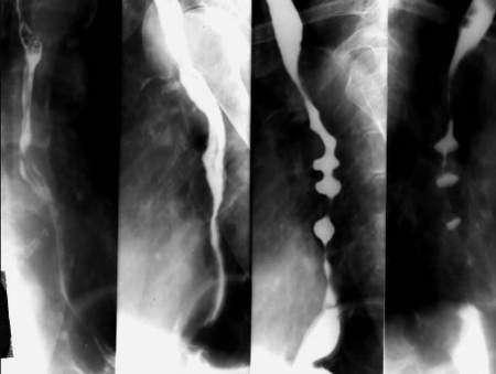 rentgen-pischevoda-i-zheludka-rentgenografiya-rentgenoskopiya-3.jpg