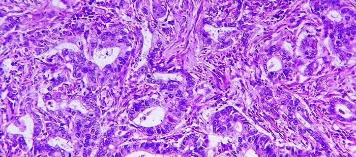 adenokarcinoma-zheludka.jpg