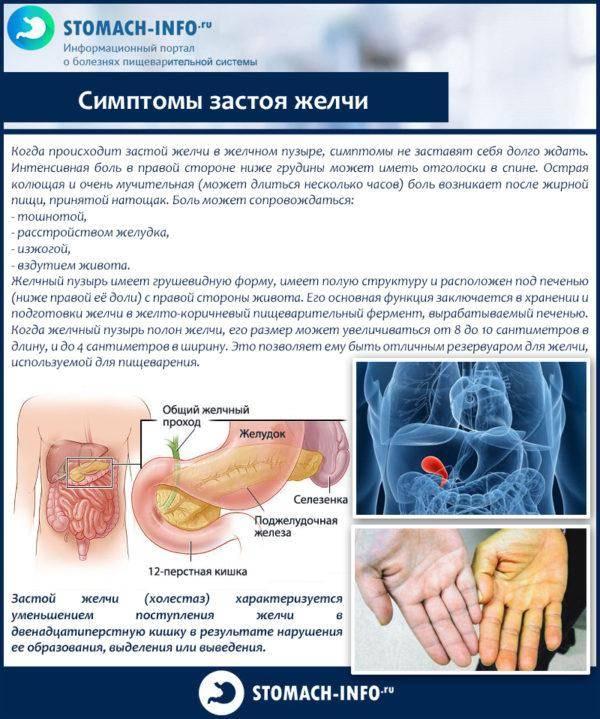 Simptomyi-zastoya-zhelchi-600x719.jpg