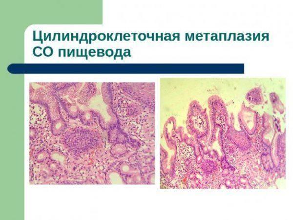 TSilindrokletochnaya-metaplaziya-pishhevoda-600x450.jpg