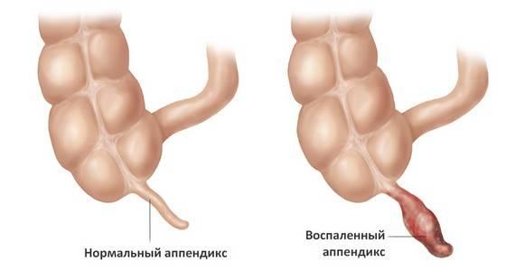 vospaleniye-appendiksa.jpg