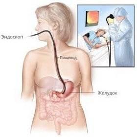 fibrogastroduodenoskopiya.jpg