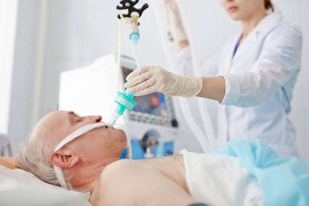 Intubatsiya-pered-promyvaniem-zheludka-1024x683.jpg