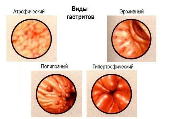 Vidyi-gastritov-600x415.jpg