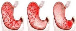 Diagnoz-gemorragicheskij-gastrit--300x123.jpg