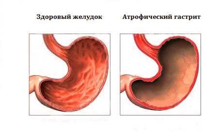atroficheskij-gastrit-simptomy-i-lechenie-5.jpg