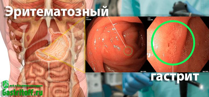 Eritematoznyj-gastrit-zheludka-na-snimkah-FGDS-v-uvelichennom-vide.png