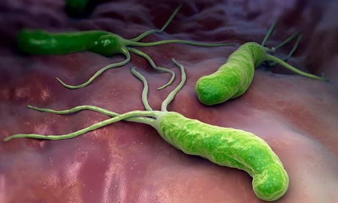 infektsionnyj-gastrit-8.jpg