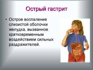 slide-14-300x225.jpg