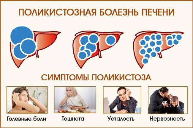 polikistoz-pecheni_25.jpg