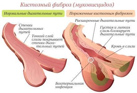 fibrosis.jpg