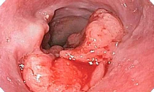 rak-pischevoda-rannie-simptomyi-i-priznaki-2.jpg