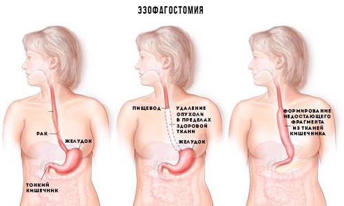 rak-pischevoda-rannie-simptomyi-i-priznaki-4.jpg